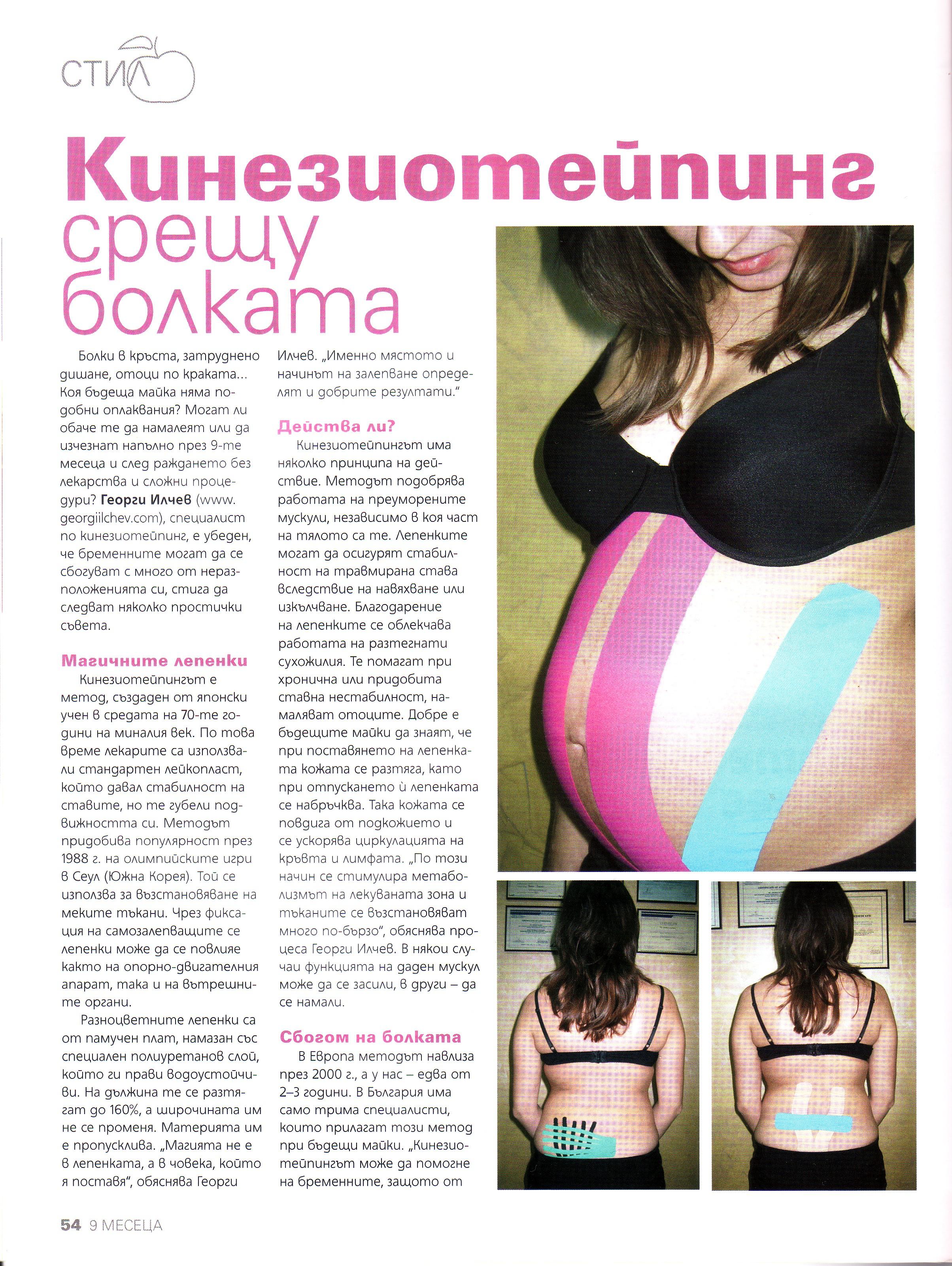 Кинезиотейпинг при бременност (9 месеца)