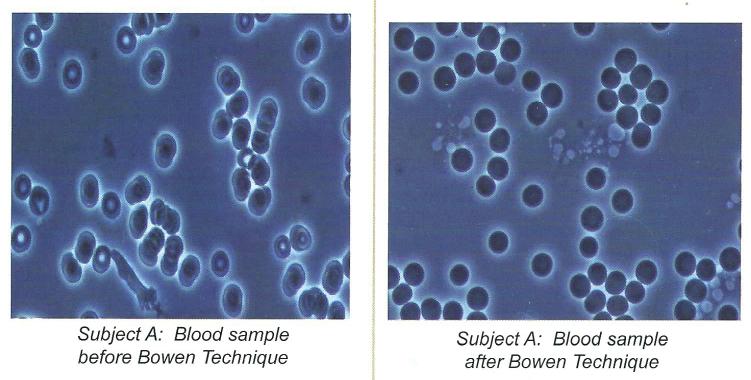 bowen-cell-effects-1