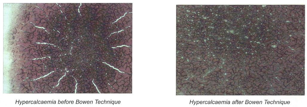 bowen-cell-effects-4