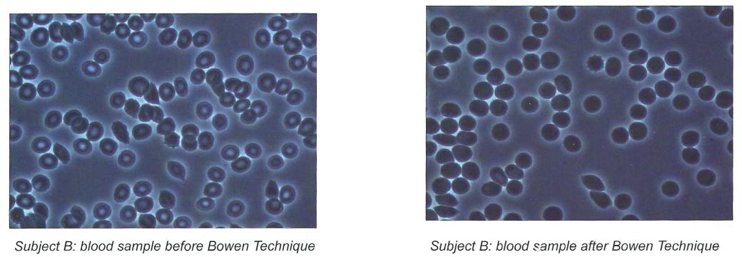 bowen-cell-effects-5